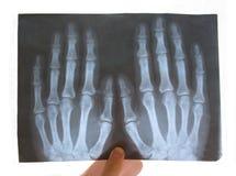 Medisch exemplaar van een gebroken hand Stock Foto's