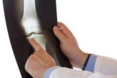 Medische arts die met vinger op röntgenfoto richt Royalty-vrije Stock Foto's