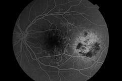 Medische Fundus foto van retinopathy Stock Foto