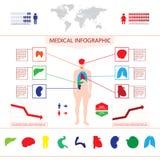 Medische grafische informatie. Royalty-vrije Stock Afbeeldingen