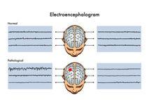 Elektroencefalogram vector illustratie