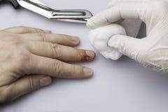 Medische uitrustingen met zwabber worden gesneden die Royalty-vrije Stock Foto