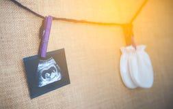 Medizinische Bildcollage des Ultraschalls während der Frauenschwangerschaft, die Fötus im dritten Monat und stetoscope auf weißem Stockfotos
