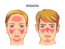 Medizinische Illustration von Rosacea auf Gesicht lizenzfreie abbildung