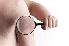 Medizinische Prüfung - Psoriasis Lizenzfreies Stockfoto