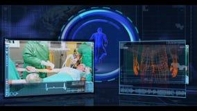 Medizinische Schnittstelle Digital, die verschiedene chirurgische Klipp zeigt stock video