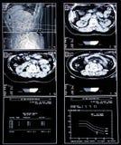 Medizinischer Scan der Gesundheit Lizenzfreies Stockbild