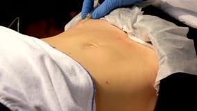 Medizinisches Einspritzungsverfahren in der Haut stock video