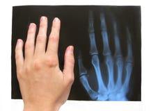 Medizinisches Exemplar einer gebrochenen Hand lizenzfreie stockfotografie