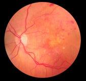 Medizinisches Fundusfoto der Retinopathy-Blutung Stockbilder