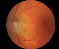 Medizinisches Fundusfoto von Macula Lizenzfreies Stockbild