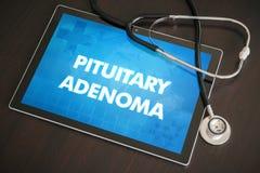 Medizinisches Konzept der pituitären Diagnose des Adenoma (endokrine Krankheit) Stockbilder