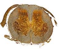 Medula espinal Mancha de prata fotografia de stock