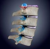 Medula espinal sob a pressão do disco inflando ilustração royalty free