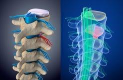 Medula espinal sob a pressão do disco inflando Opinião do raio X Ilustração medicamente exata ilustração do vetor