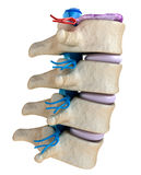 Medula espinal sob a pressão do disco inflando Fotografia de Stock
