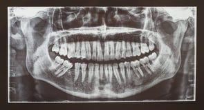Medyczny prześwietlenie lub radiologia stomatologiczni zęby Zdjęcie Stock