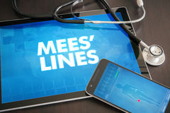 Mees' lines (cutaneous disease) diagnosis medical concept Stock Photos