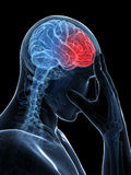 Megrim/ headache Stock Photo
