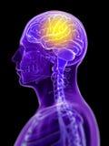 Megrim/ headache Stock Images