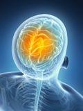 Megrim/ headache Stock Image