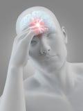Megrim/headache Stock Images