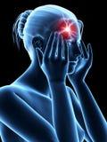 Megrim/headache Stock Photography
