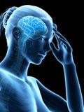 Megrim, migrena/ royalty ilustracja