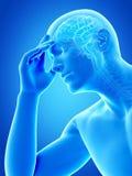Megrim, migrena/ ilustracji