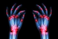 Mehrfache gemeinsame Arthritis beide Erwachsenhände (Gicht, rheumatisch) auf schwarzem Hintergrund stockfotografie