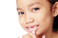 Meine fehlenden Zähne Stockfotografie