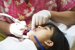 Meisje dat tanden heeft die bij tandarts worden schoongemaakt royalty-vrije stock afbeeldingen