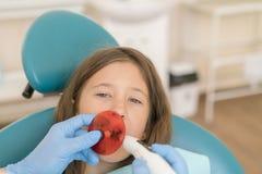 Meisje die tand vullende behandeling krijgen bij maaltand met ultraviolette technologie Beeld van meisje die haar langs gecontrol royalty-vrije stock afbeelding