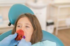 Meisje die tand vullende behandeling krijgen bij maaltand met ultraviolette technologie Beeld van meisje die haar tanden hebben stock afbeeldingen