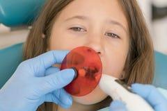 Meisje die tand vullende behandeling krijgen bij maaltand met ultraviolette technologie Beeld van meisje die haar tanden hebben stock fotografie