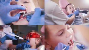 4 in 1 - meisje en jongensbabys bij de tandartsruimte sluit omhoog mond stock videobeelden