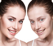 Meisje met acne before and after behandeling royalty-vrije stock fotografie