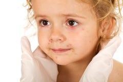 Meisje met kleine pox bij de arts stock foto