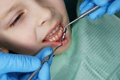 Meisje in tandkliniek stock afbeelding