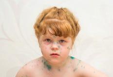 meisje, zieke waterpokken Stock Foto's