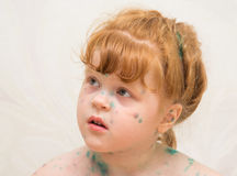meisje, zieke waterpokken royalty-vrije stock fotografie