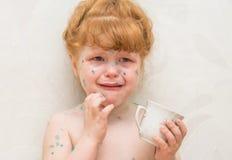 meisje, zieke waterpokken royalty-vrije stock afbeeldingen