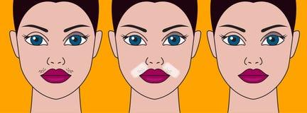 Meisjessnor, kosmetisch tekort vector illustratie
