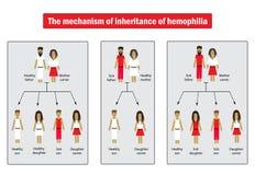 Mekanismen av arv av blödarsjuka Infographics Vektorillustration på bakgrund stock illustrationer