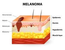Melanom oder Hautkrebs lizenzfreie abbildung