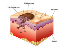 Melanoma royalty free illustration