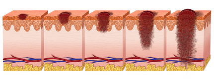 Melanoma. Various stages of degeneration of melanoma Stock Photography