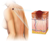 Melanoma on the back. Image of a woman with a melanoma on the back Stock Photography