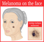 Melanoma on the cheek. Lentigo maligna melanoma on the cheek of an elderly woman Stock Photography