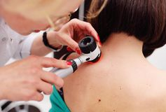 Melanoma diagnoinspectionsis. the doctor examines the patient`s mole. Doctor examining birthmarks and moles patient. examination of birthmarks and moles.the royalty free stock images